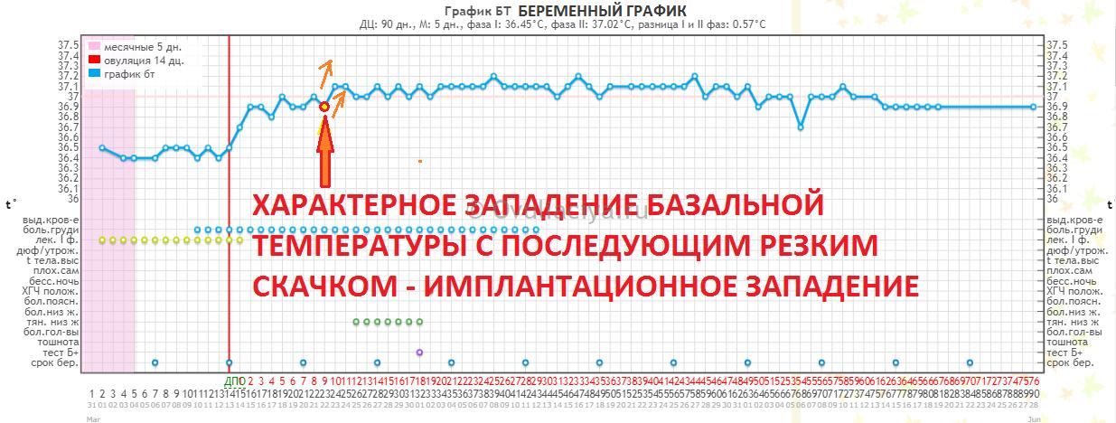 Беременный график БТ с ростом температуры после имплантации