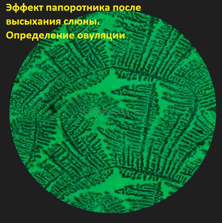 Эффект папоротника при кристаллизации слюны перед овуляцией под микроскопом