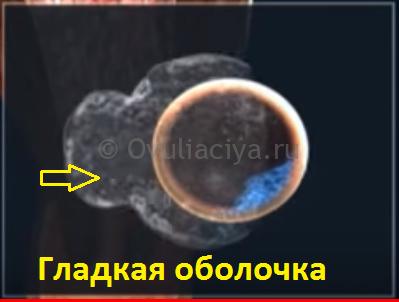 хетчинг - на 6 день после овуляции будущий эмбрион вылупляется из гладкой оболочки. Так будет легче прикрепиться к маме