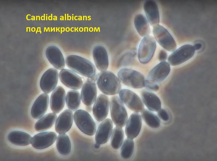 Чаще всего молочницу (кандидоз) вызывает грибковая инфекция под названием Candida albicans