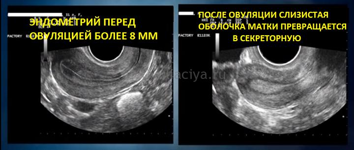 По состоянию эндометрия матки определяется готовность организма к овуляции